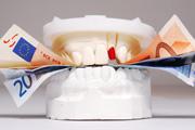 Preis Zahnzusatz
